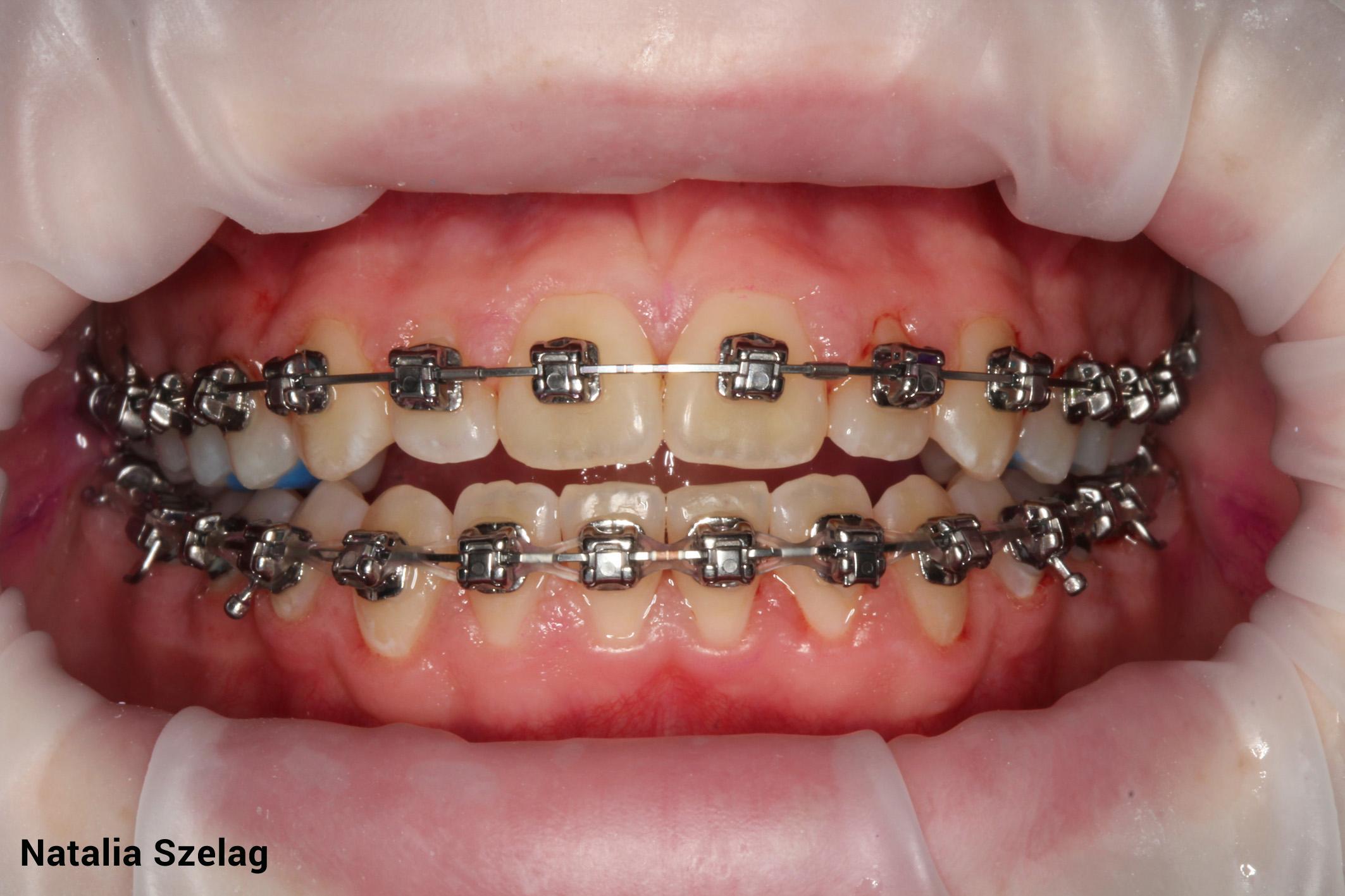 Pacientul ortodontic – Din iad în rai.
