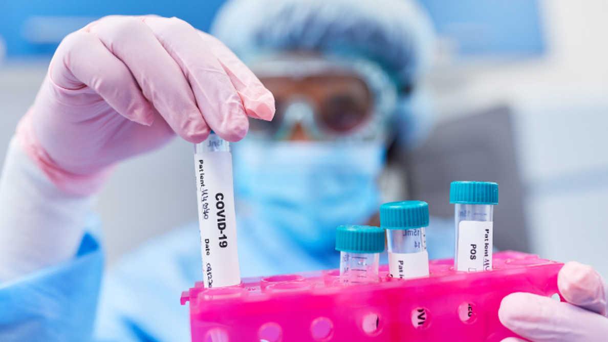 Testarea pentru SARS-CoV-2 prin testele de salivă din ce în ce mai populară